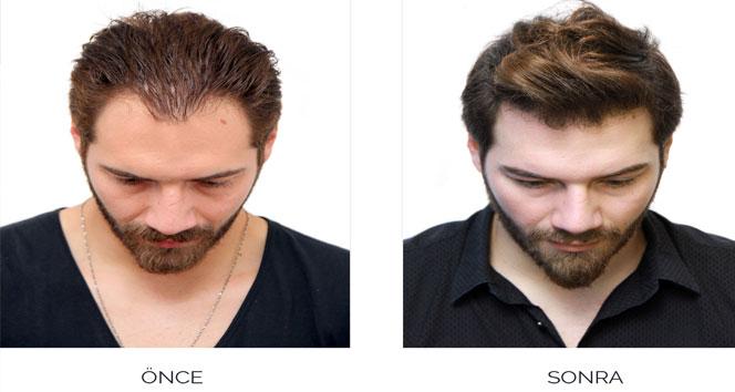 Saç dökülmesi organik enjeksiyonla durduruluyor