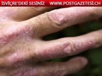 Sedef hastalığı yaşayanlara yardım için danışmanlık