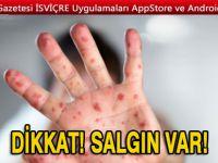 Dikkat! Avrupa'da kızamık salgını: 37 kişi hayatını kaybetti
