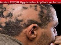 Saçkıran tedavisi nasıl olur?